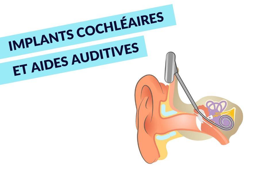 Implants cochléaires et aides auditives